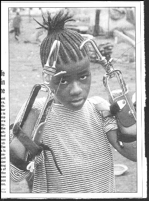 Photo of young african female double-amputee, with hooks.
